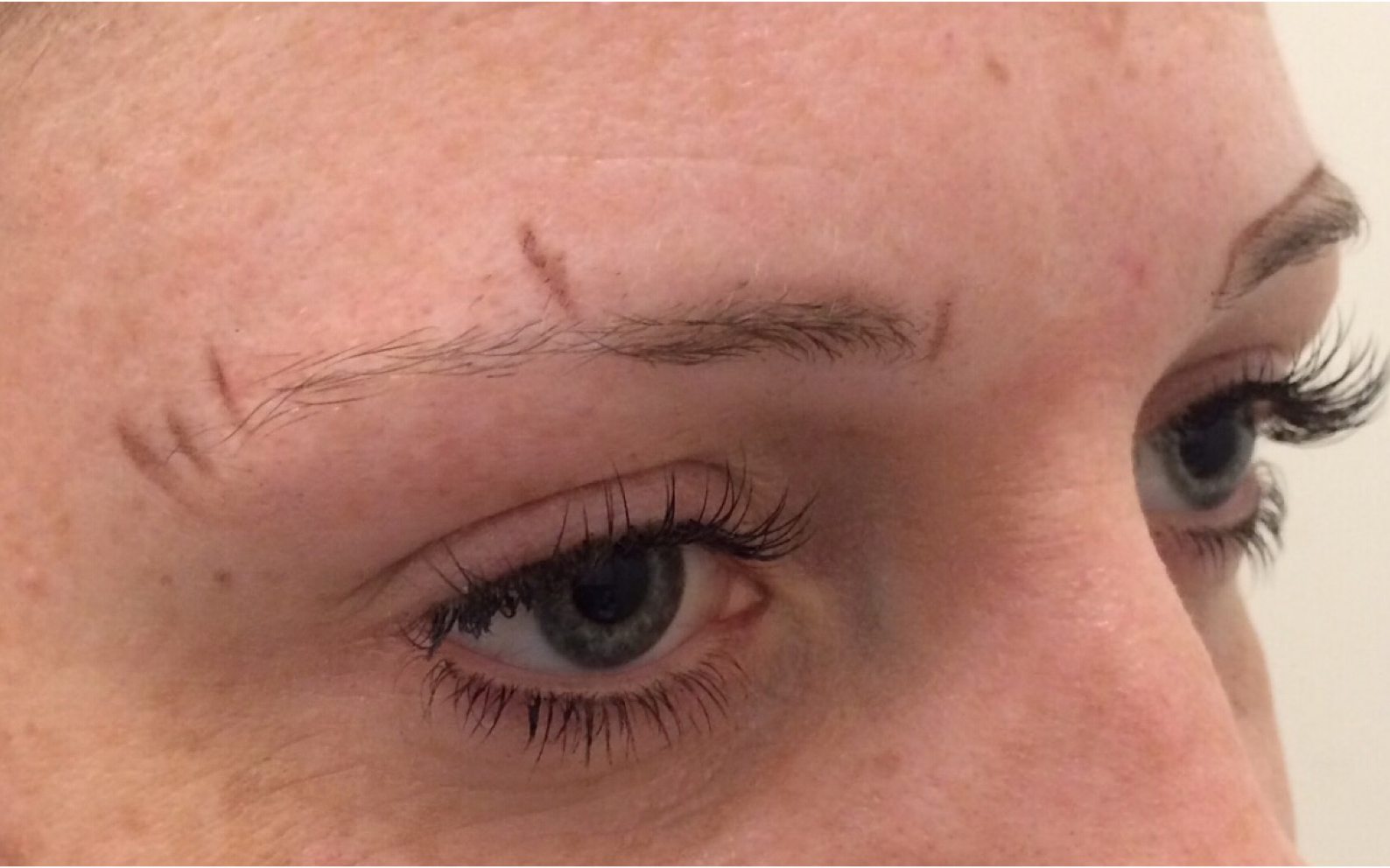 Before-highbrowthree